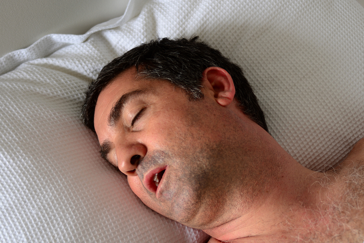 central sleep apnea - surgical sleep solutions