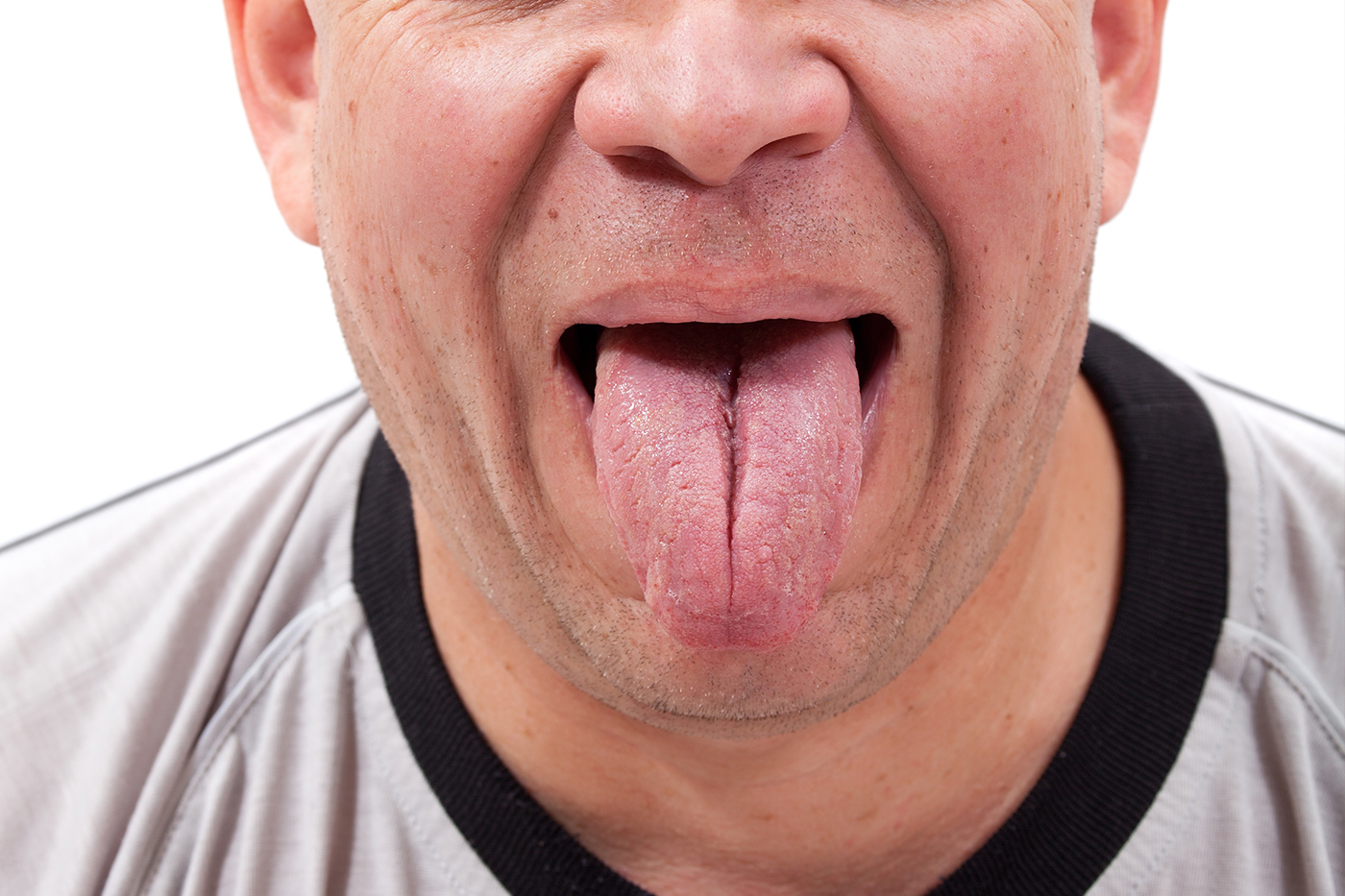sleep apnea and tongue exercises - surgical sleep solutions