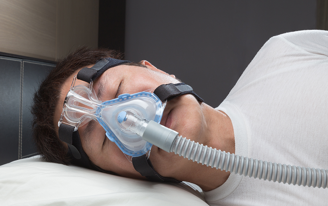 cpap issues - osa sufferers - surgical sleep solutions